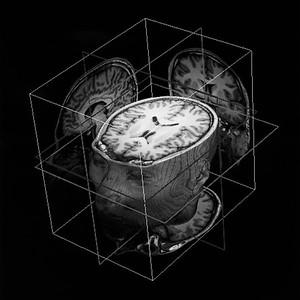 Lin Yangchen MRI brain 3D